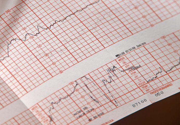Niebezpieczna choroba serca – tachykardia
