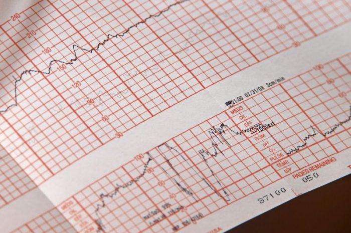 Tachykardia – co to jest, przyczyny, objawy i leczenie