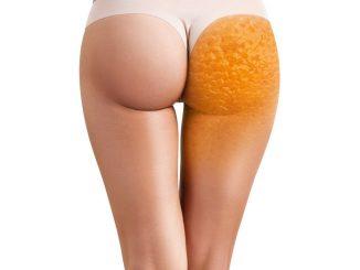 redukcja-cellulitu
