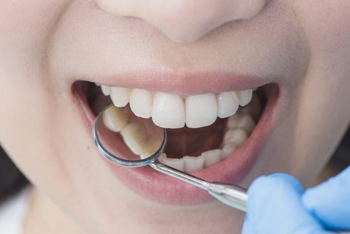 Drukarki 3D w stomatologii – jak mogą się przydać?