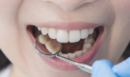 zbliżenie-na-biały-uśmiech-kobiety-u-dentysty