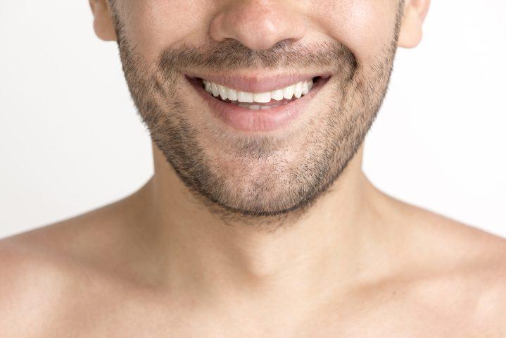 Wybielanie zębów – na czym polega i czego użyć?